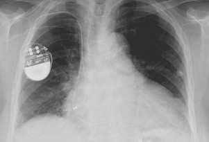 Can Electric Cars & Hybrids Interfere With Pacemakers?